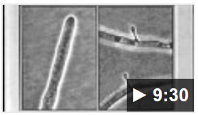 Nematode video part 2